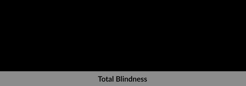 Legal Blindness Vs Total What S The Difference